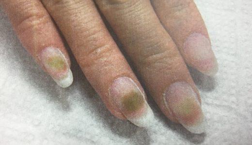 ジェルネイルやスカルプチュアを外したら爪が緑に変色・・・・
